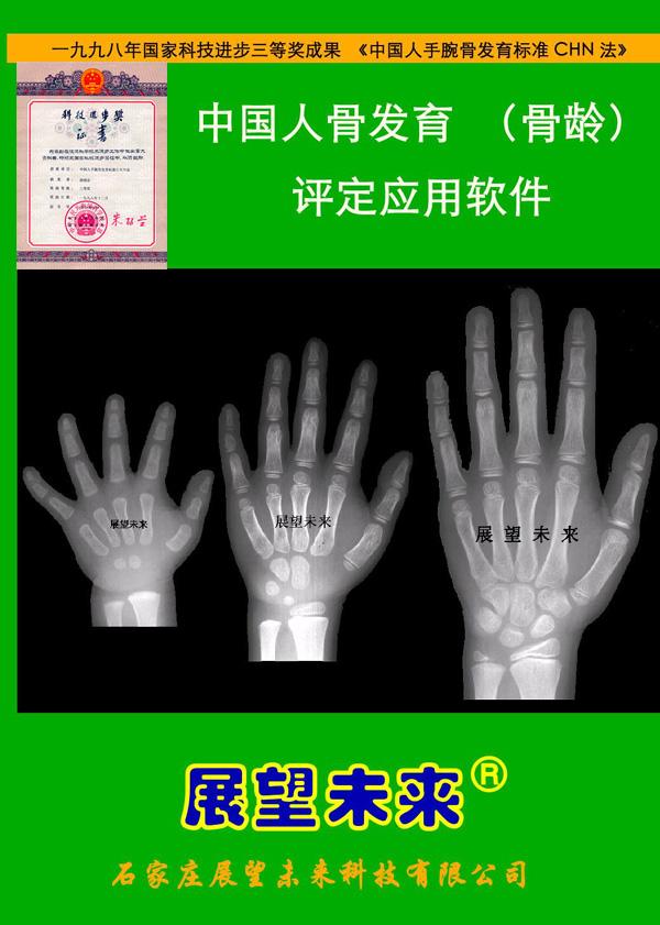 中国人骨发育(骨龄)评定与应用软件(骨龄软件)——临床标准版