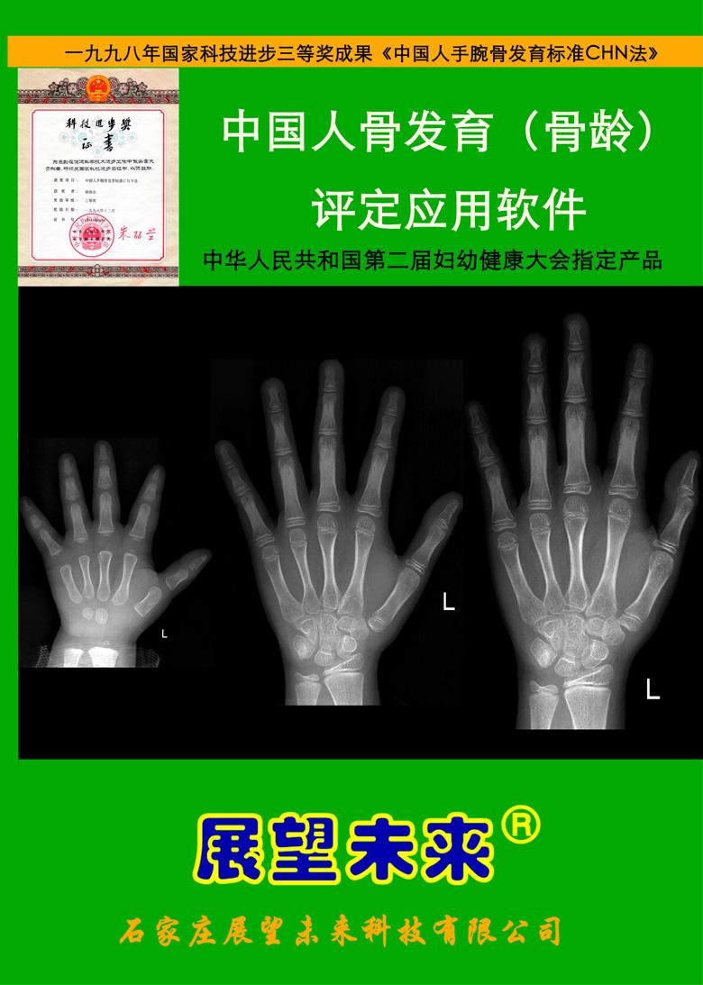中国人骨发育(骨龄)评定应用软件(骨龄软件)——法医版