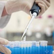 iTRAQ定量蛋白质组学服务