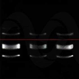 明胶酶谱实验