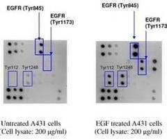 Raybiotech 细胞因子抗体芯片检测服务