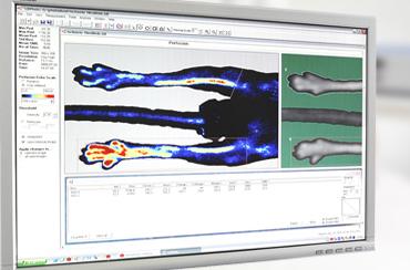 激光多普勒成像仪软件 LDPIWin
