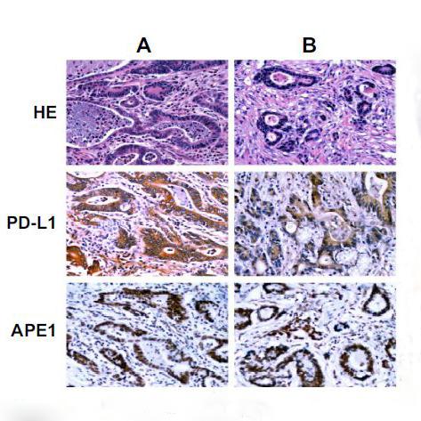 临床实验免疫组化