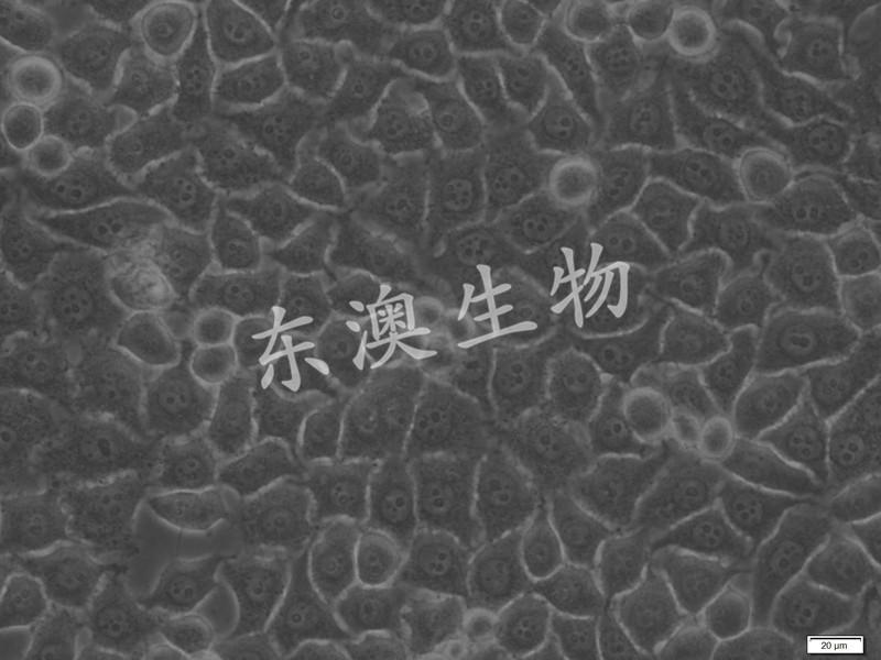 BGC-823人胃腺癌细胞(低分化)