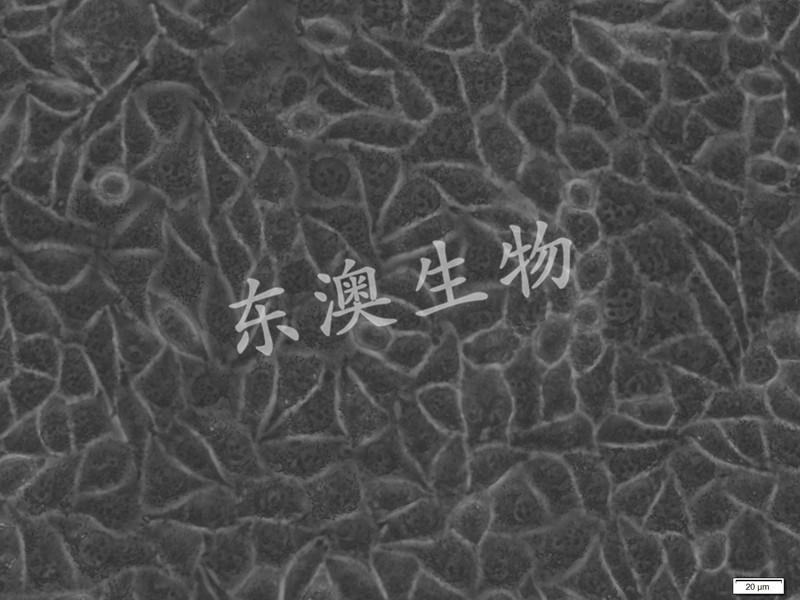 MCF-7人乳腺癌细胞