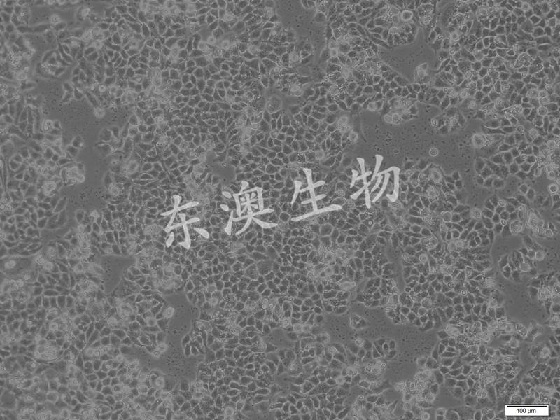 SGC-7901人胃腺癌细胞