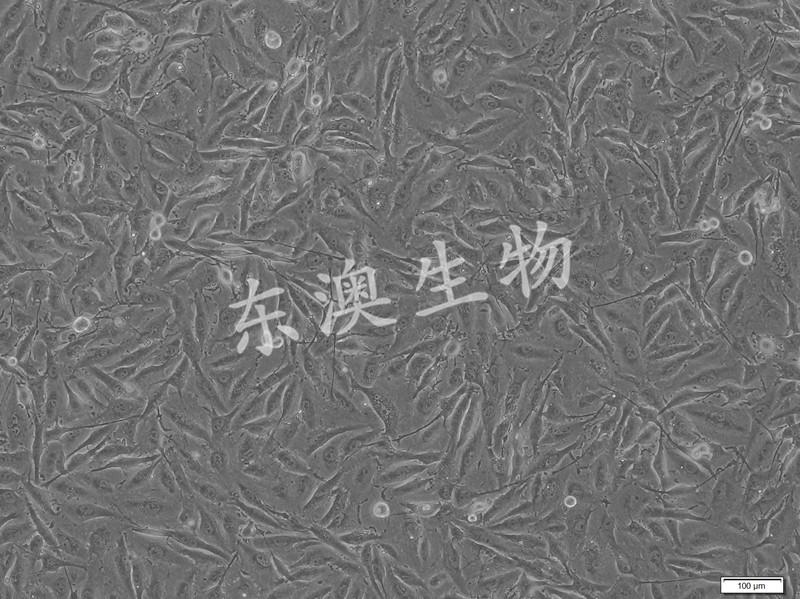U251人胶质瘤细胞