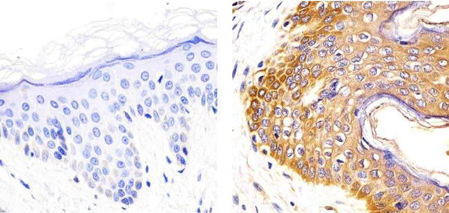 IL-2 Antibody (2H20L7), ABfinity™ Rabbit Monoclonal